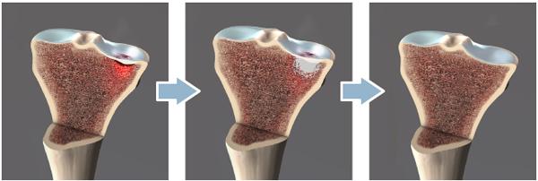 subchondroplasty